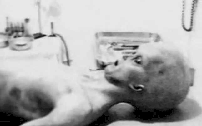 Incidentul Roswell Autopsii Pe Extraterestrii?